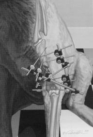OrthopedicSurgery
